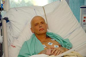 Alexander Litvinenko, que ha perdido el cabello, en el hospital. (Foto: AP)