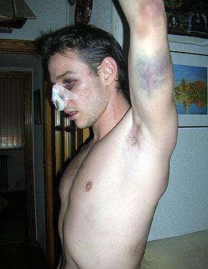 Daniel Guilló muestra las heridas. (Foto: elmundo.es)