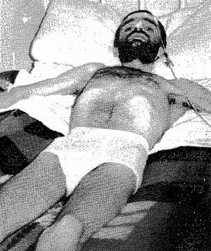 José Manuel Sevillano, postrado en una cama, antes de morir en el Gregorio Marañón. (Foto: EFE)