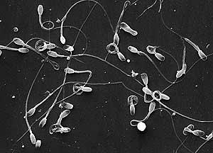 Esperma de lince. (Foto: CSIC)