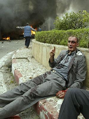 Uno de los heridos del atentado en el Palacio Presidencial de Argel. (Foto: REUTERS)
