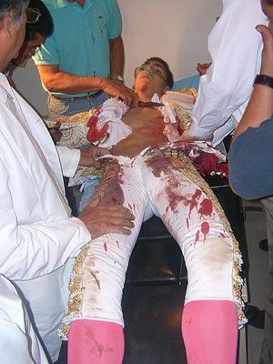 El joven diestro, atendido en la enfermería. (Foto: Burladerodos)