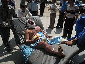 Uno de los heridos en Amarli. (Foto: AP)
