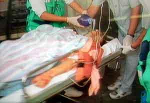 Llegada de Miguel Ángel Blanco herido al hospital Nuestra Señora de Aranzazu. (Foto: EFE/TV)