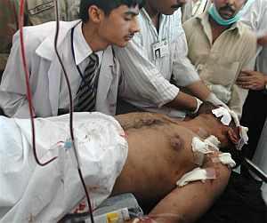 Uno de los islamistas heridos en el combate contra el ejército. (Foto: AP)