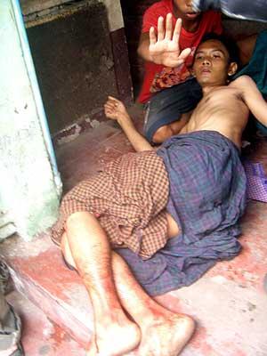 Un manifestante herido es atendido por un compañero en Rangún. (Foto: EFE)