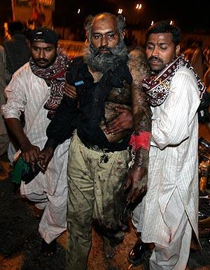 Pakistán trasladad a uno de los heridos del atentado. (Foto: AFP)