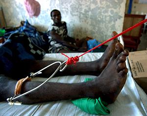 Un herido en un hospital de Médicos Sin Fronteras en Rutshur. (Foto: EFE)