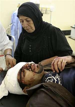 Una mujer hace compañía a su hijo herido en un hospital de Bagdad. (Foto: AP)