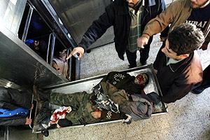 Uno de los heridos en el ataque es trasladado a un hospital. (Foto: AFP)