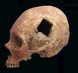 Uno de los cráneos descubiertos por los arqueólogos, con un gran agujero donde se realizó una operación. (Foto: Valerie Andrushko)