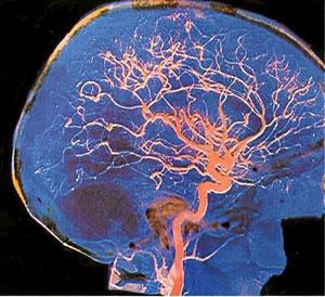 Imagen del cerebro en una exposición de ESOF 2008.