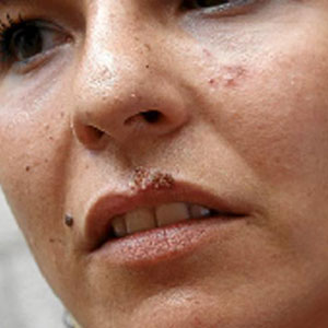 El labio de Raquel mostraba, una semana después, secuelas. (Foto: Jordi Avellà)