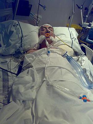 El brigadista afectado por la bacteria 'comecarne' en la UCI del Hospital de Requena. (Foto: El Mundo)