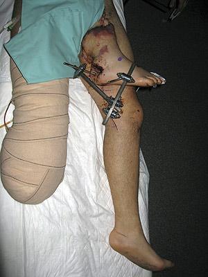 Reimplantan La Pierna Derecha A Un Paciente Tras Hacerlo En La Ingle