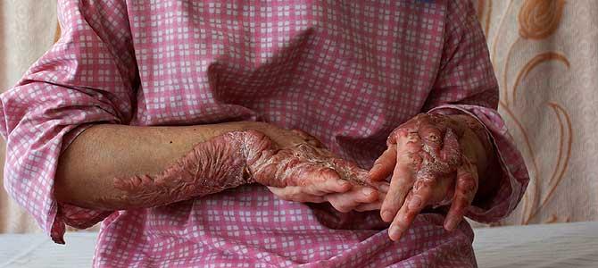 Aziza no puede desvelar su identidad por razones de seguridad. Sus manos quedaron deformadas por las quemaduras causadas por su marido. Foto: Mònica Bernabé