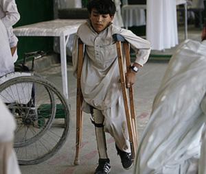 Un niño amputado por una bomba se recupera en un hospital. (Foto: Reuters)