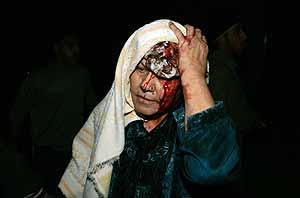Una mujer herida en Gaza. (Foto: AFP)