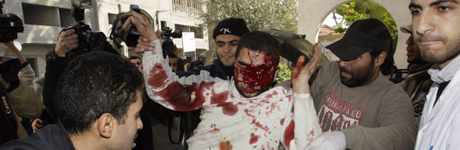 Un joven palestino herido es trasladado a un hospital de Gaza. (Foto: AP)
