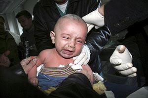 Un niño palestino es examinado en el hospital tras ser herido en un bombardeo. (Foto: AP)