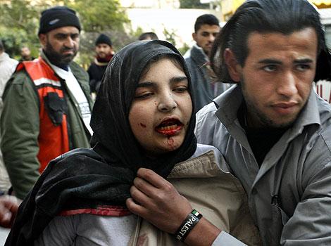 Una mujer herida a consecuencia de los ataques israelíes es hospitalizada en Beit Lahiya (Franja de Gaza). (Foto: AP)
