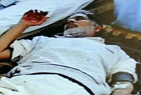 Imagen de televisión de uno de los heridos en el atentado en Pakistán. | AFP
