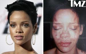 Así quedó la cantante tras la paliza.