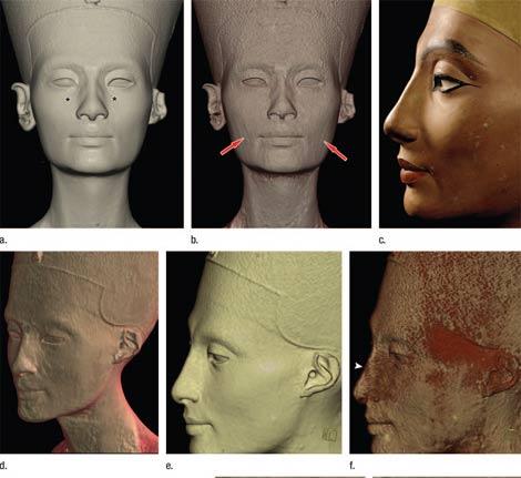 Imágenes de tomografía computerizada que muestran el rostro interior (la segunda de arriba, la primera y tercera de abajo) esculpido bajo el busto de Nefertiti. | 'Radiology'