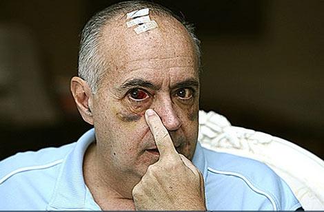Moreno, tras la agresión. | Efe