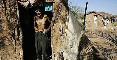 Un desnutrido habitante del Impenetrable. | AP