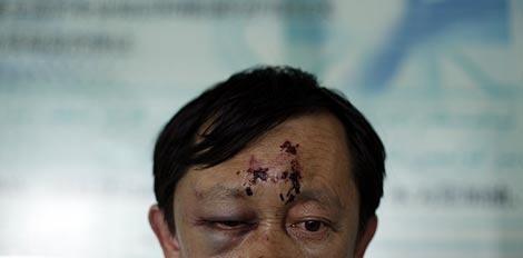 Un hombre herido durante los altercados en Urumqi. | Reuters