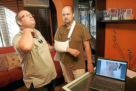 Los dos hermanos muestran las heridas supuestamente causadas por los agentes | L.Hevesi.