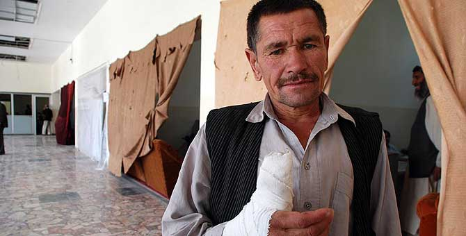 El empleado de la limpieza Abdul Anan, con el dedo herido. Al fondo, despachos con cortinas, a falta de las puertas arrancadas por la onda expansiva. | M. Bernabé