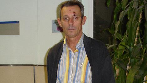 Josep Anglada, líder de PxC, muestra varias heridas en la cabeza | PxC