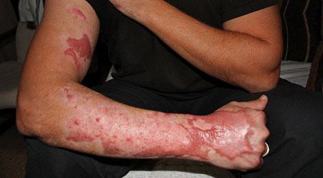 Imagen del brazo derecho del tedax accidentado. | L. Cugat