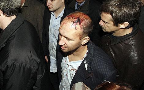 Uno de los heridos, ya en San Petersburgo. | Reuters