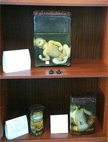 Varios fetos con malformaciones en la Universidad de Medicina de Semey. | A. F
