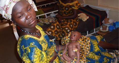 Una madre sostiene a su hijo con malnutrición y malaria en Níger. | Afp