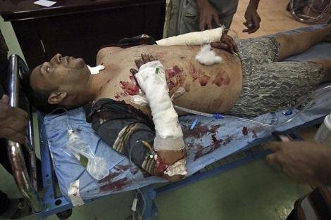 Un hombre herido durante el atentado. | Ap