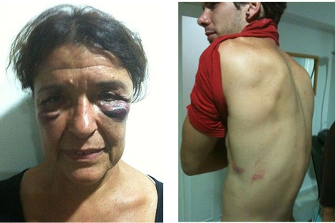 El rostro de Carmen Roger y el torso de Pablo Monederos, tras los golpes.