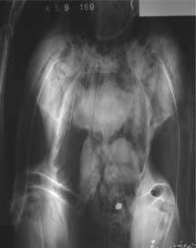 Radiografía de un cóndor. | CSIC