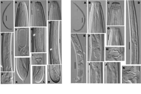 Imágenes microscópicas de los dos gusanos encontrados. | SINC
