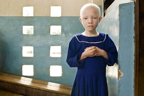 Los albinos, una población perseguida en Tanzania.