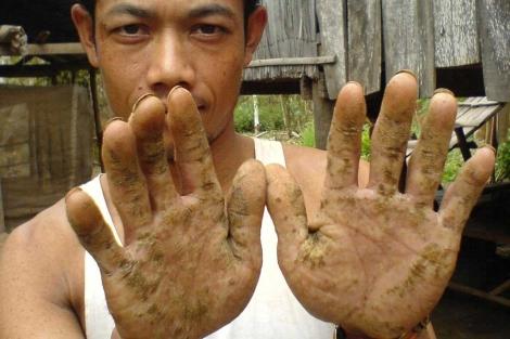 Un vietnamita muestra la piel de las manos, dañada por el arsénico.|PNAS