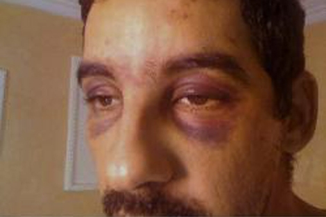 Ahmed Yedu Salem Lecuara, español torturado en El Aaiún. | FSH