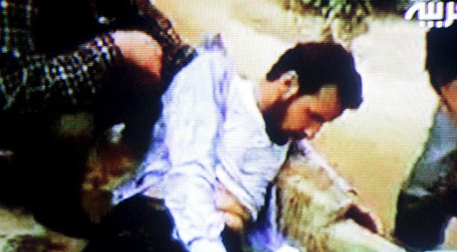 Uno de los heridos durante los ataques contra los manifestantes. | Afp