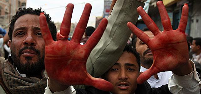 Uno de los heridos muestra sus manos manchadas de sangre. | Afp