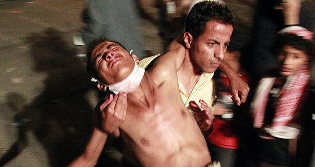 Uno de los manifestantes heridos durante la represión de las fuerzas de seguridad en Taiz.   Reuters