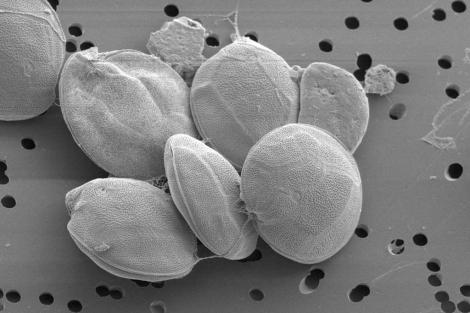 Imagen de la nueva especie de microalga tóxica ('Gambierdiscus excentricus').| IEO