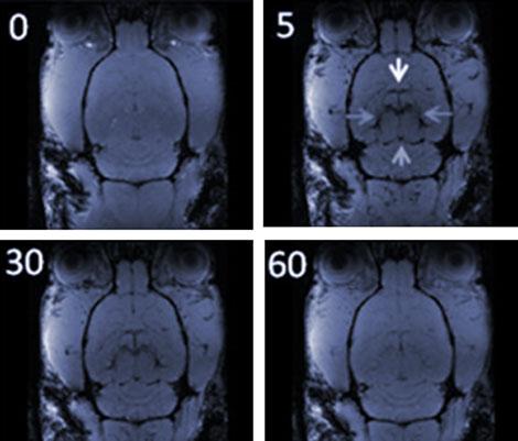 Imagen por RMI antes y después de la presencia de nanopartículas de óxido de hierro. |P. Morales